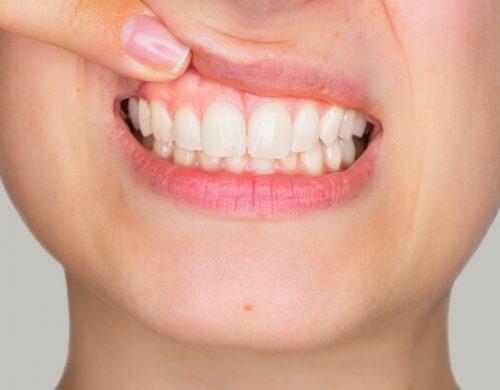 лечение десен dentfamily, фото